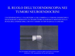 L`ecoendoscopia - Associazione Medici Endocrinologi