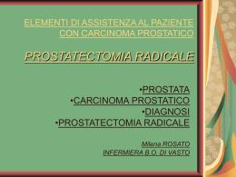 K prostat e prostatectomia radicale assistenza sala operatoria