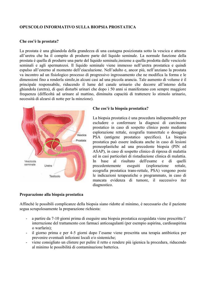 biopsia della prostata inoltre enteroclisi in ospedale